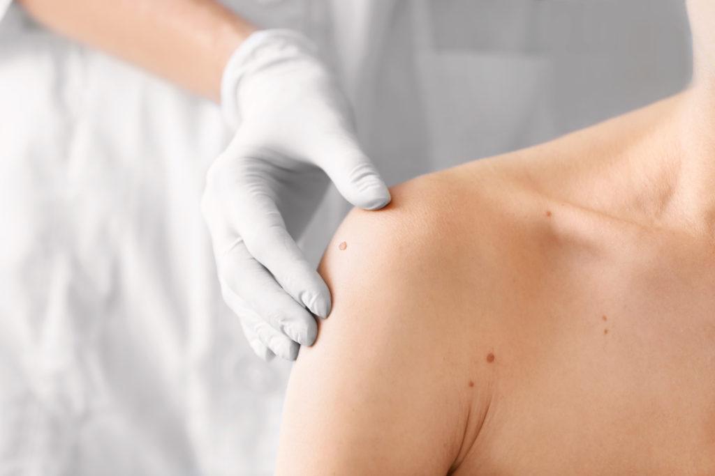 Dermatological Services