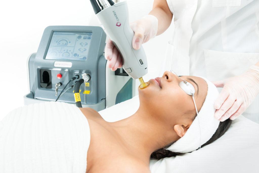 laser hair removal san antonio